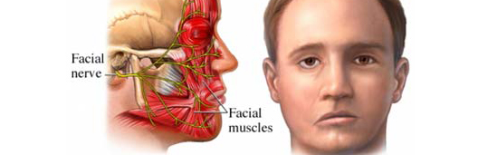 Bell's palsy_top banner