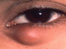 Chalazions and Styes and Cysts - Dr Peter Heyworth