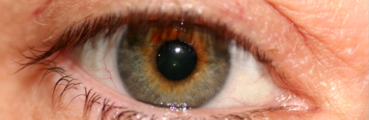 Corneal infections-Keratitis_top banner