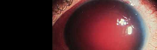 Eye Injuries_top banner