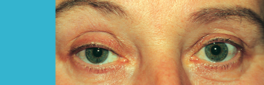 Ptosis_top banner