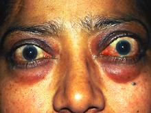 Thyroid Eye Disease Dr Peter Heyworth
