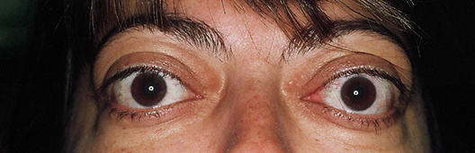 Thyroid Eye Disease_top banner